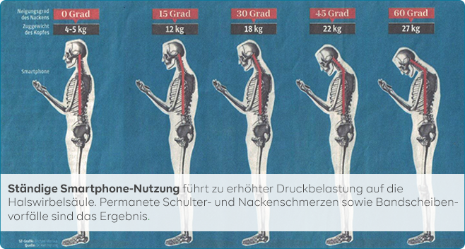 Kopf- und Nackenschmerzen durch Smartphone Nutzung